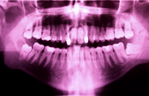 X-ray shows patient needs teeth extraction to improve dental health in Chelsea MA