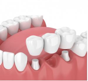 Image of dental bridge in Chelsea MA