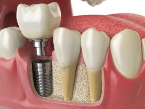Dental implant example for teeth replacement in Chelsea MA.