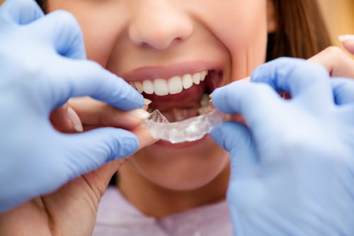 Patient with Invisalign invisible braces in Chelsea MA.