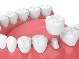 Image of dental crown in Chelsea MA