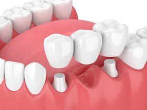 Image of dental bridge in Chelsea MA.