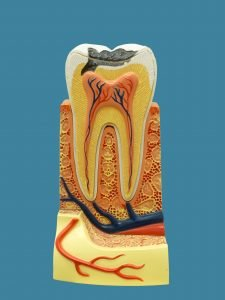Model that explains tooth parts for a root canal treatment due to infection. Chelsea MA.